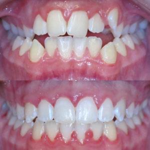 Bandeen Orthodontics Case Studies Narrow Smiles