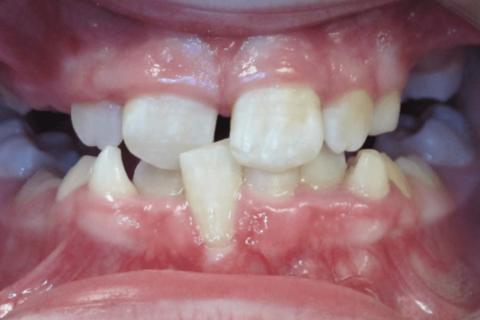 Case Study 43 – Crossbite