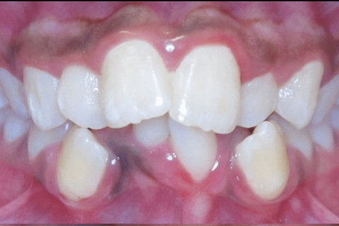 Case Study 13 – Extractions
