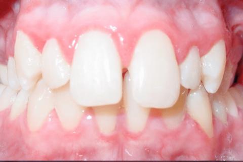 Shape of Teeth
