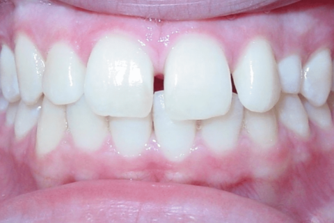 Case Study 74 – Canine impaction in the roof of the mouth