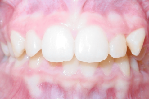 Case Study 76 – Missing lower right second premolar and replaced with dental implant