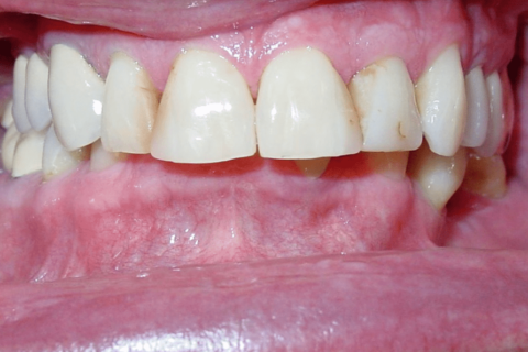 Case Study 80 – Deep bite with multiple molars and premolars missing