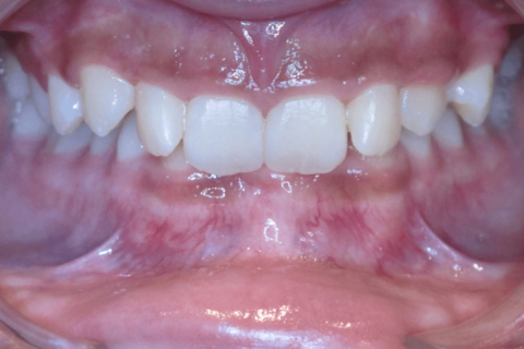 Case Study 82 – Missing a lower incisor, and camouflaged the absence of both with moving the other teeth forward