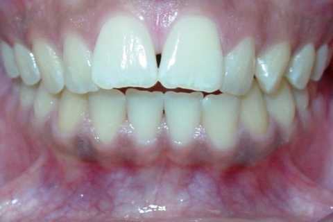 Case Study 35 – Open Bite