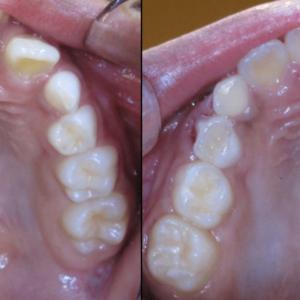 Bandeen Orthodontics Case Studies Crowding