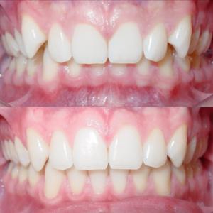 Bandeen Orthodontics Case Studies Class IIBandeen Orthodontics Case Studies Class II