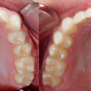 Bandeen Orthodontics Case Studies Class II
