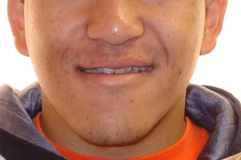 Case Study 11 – Orthodontic Class III