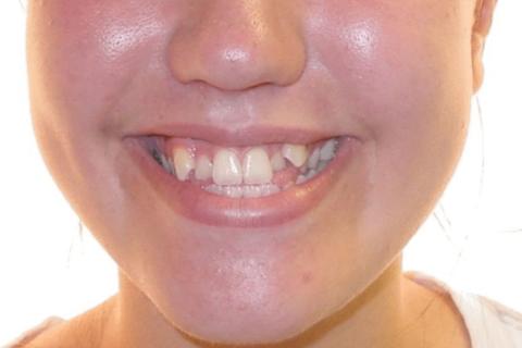 Case Study 8 – Orthodontic Class III