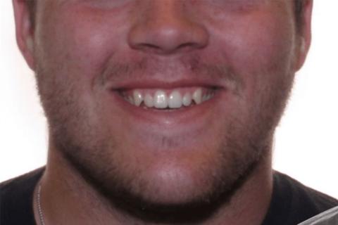 Case Study 9 – Orthodontic Class III